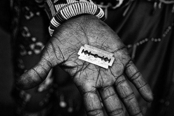 La mutilazione genitale femminile è in calo. Ma ancora troppo diffusa